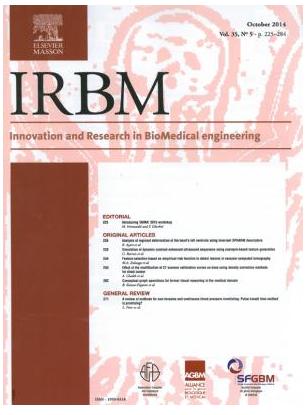 IRBM Février 2012